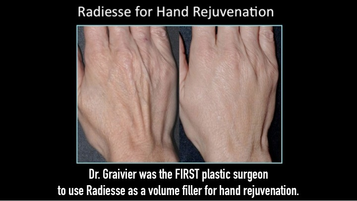 New! RADIESSE for Hands